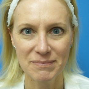 After Photo - Nose Surgery - Case #18313 - 49 year old  -  Rhinoplasty/Septoplasty/Turbinectomy  -  3 months post-op - Frontal View