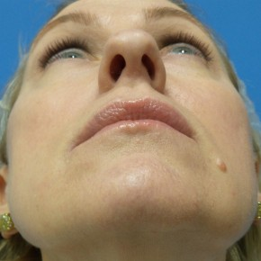 Before Photo - Nose Surgery - Case #18313 - 49 year old  -  Rhinoplasty/Septoplasty/Turbinectomy  -  3 months post-op - Worm's Eye View