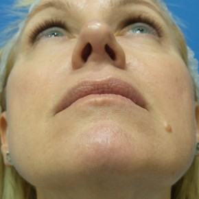 After Photo - Nose Surgery - Case #18313 - 49 year old  -  Rhinoplasty/Septoplasty/Turbinectomy  -  3 months post-op - Worm's Eye View