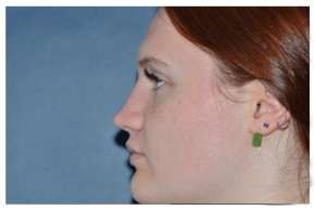 After Photo - Fillers - Case #18316 - Non-Surgical Rhinoplasty - Lateral View