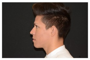 After Photo - Fillers - Case #18318 - Non-Surgical Rhinoplasty - Lateral View