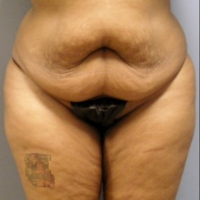 Before Photo - Tummy Tuck - Case #17235 - Frontal View