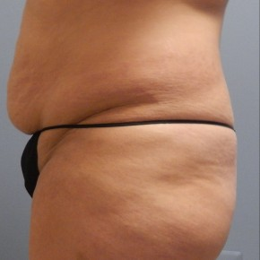 Before Photo - Liposuction - Case #17236 - Lateral View