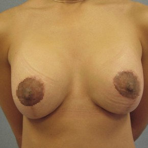 After Photo - Breast Augmentation - Case #13388 - Breast Lift & Augmentation - Frontal View