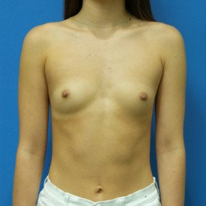 Before Photo - Breast Augmentation - Case #18321 - 22 year old - 295cc - High Cohesive - Shaped - silicone gel - Frontal View