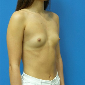 Before Photo - Breast Augmentation - Case #18321 - 22 year old - 295cc - High Cohesive - Shaped - silicone gel - Oblique View