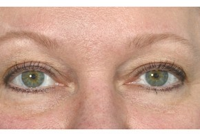 Before Photo - Eyelid Surgery - Case #18328 - Eye Area Rejuvenation - Frontal View