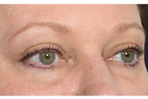 After Photo - Eyelid Surgery - Case #18328 - Eye Area Rejuvenation - Oblique View
