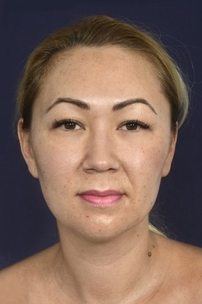 Before Photo - Liposuction - Case #18335 - Neck / Chin Liposuction - Frontal View