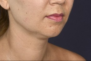 Before Photo - Liposuction - Case #18336 - Neck / Chin Liposuction - Oblique View