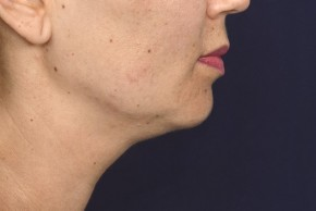 Before Photo - Liposuction - Case #18336 - Neck / Chin Liposuction - Lateral View
