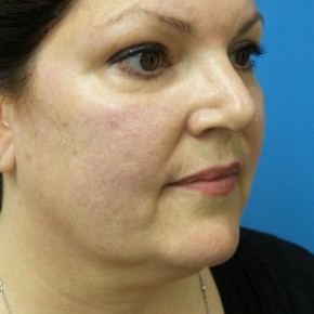 Before Photo - Liposuction - Case #18337 - 47  year old  -  SkinTite with J-Plasma RF & Liposuction of Neck  -  2 months post-op - Oblique View