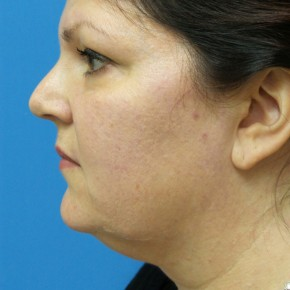 Before Photo - Liposuction - Case #18337 - 47  year old  -  SkinTite with J-Plasma RF & Liposuction of Neck  -  2 months post-op - Lateral View