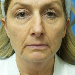 Before Photo - Facelift - Case #18339 - 55 year old  -  Facelift  -   3 month post-op - Frontal View