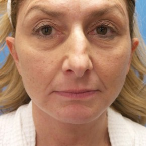 After Photo - Facelift - Case #18339 - 55 year old  -  Facelift  -   3 month post-op - Frontal View