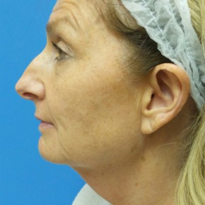 Before Photo - Facelift - Case #18339 - 55 year old  -  Facelift  -   3 month post-op - Lateral View