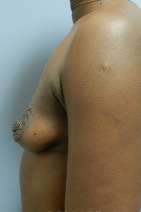 Before Photo - Breast Augmentation - Case #18341 - Lateral View