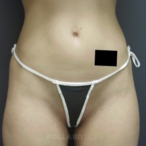 Before Photo - Liposuction - Case #13423 - Frontal View