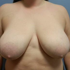 Before Photo - Breast Lift - Case #18364 - Mastopexy - Frontal View