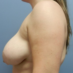 Before Photo - Breast Lift - Case #18364 - Mastopexy - Lateral View
