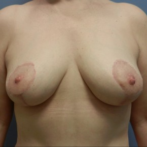 After Photo - Breast Lift - Case #18363 - Mastopexy - Frontal View