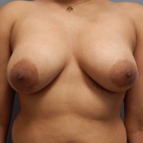 After Photo - Breast Lift - Case #18365 - Mastopexy - Frontal View