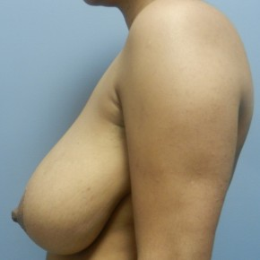 Before Photo - Breast Reduction - Case #18358 - Reduction Mammoplasty - Lateral View