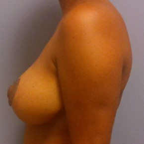 After Photo - Breast Reduction - Case #18358 - Reduction Mammoplasty - Lateral View