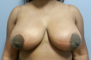 After Photo - Breast Reduction - Case #18355 - Reduction Mammoplasty - Frontal View