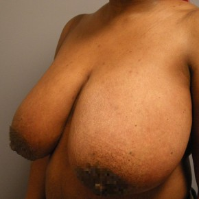 Before Photo - Breast Reduction - Case #18355 - Reduction Mammoplasty - Oblique View