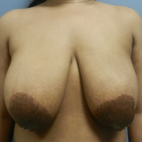 Before Photo - Breast Reduction - Case #18357 - Reduction Mammoplasty - Frontal View