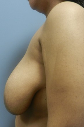 Before Photo - Breast Reduction - Case #18357 - Reduction Mammoplasty - Lateral View