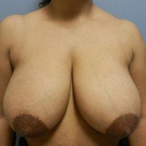 Before Photo - Breast Reduction - Case #18356 - Reduction Mammoplasty - Frontal View