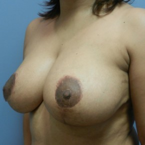 After Photo - Breast Reduction - Case #18356 - Reduction Mammoplasty - Oblique View