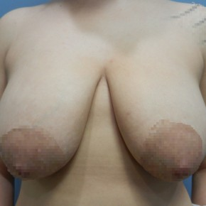 Before Photo - Breast Reduction - Case #18360 - Reduction Mammoplasty - Frontal View
