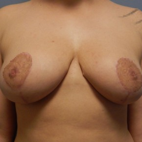 After Photo - Breast Reduction - Case #18360 - Reduction Mammoplasty - Frontal View