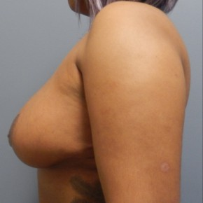 After Photo - Breast Reduction - Case #18359 - Reduction Mammoplasty - Lateral View