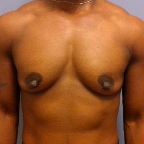 Before Photo - Breast Augmentation - Case #18343 - Frontal View