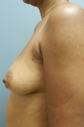 Before Photo - Breast Augmentation - Case #18346 - Lateral View