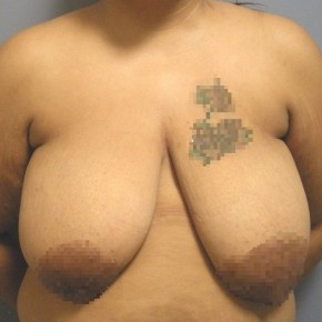 Before Photo - Breast Reduction - Case #18354 - Reduction Mammoplasty - Frontal View