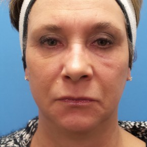Before Photo - Facelift - Case #18368 - 57 year old  -  Facelift/Laser Resurfacing under eyes  -  1 year - 7 months post-op - Frontal View