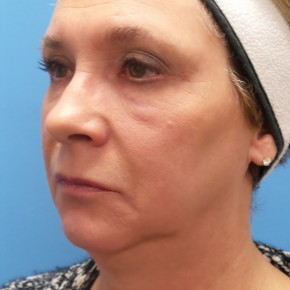 Before Photo - Facelift - Case #18368 - 57 year old  -  Facelift/Laser Resurfacing under eyes  -  1 year - 7 months post-op - Oblique View