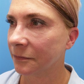 After Photo - Facelift - Case #18368 - 57 year old  -  Facelift/Laser Resurfacing under eyes  -  1 year - 7 months post-op - Oblique View