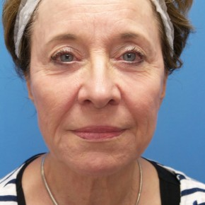 Before Photo - Facelift - Case #18369 - 68 year old  -  Facelift  -  3 months post-op - Frontal View