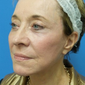 After Photo - Facelift - Case #18369 - 68 year old  -  Facelift  -  3 months post-op - Oblique View