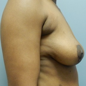 After Photo - Breast Lift - Case #18397 - Mastopexy - Lateral View
