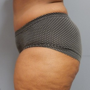 After Photo - Tummy Tuck - Case #18395 - Abdominoplasty - Lateral View