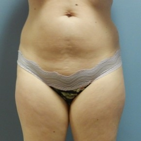 Before Photo - Liposuction - Case #18396 - Frontal View
