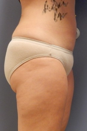 After Photo - Liposuction - Case #18396 - Lateral View