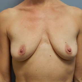 Before Photo - Breast Augmentation - Case #18394 - Frontal View